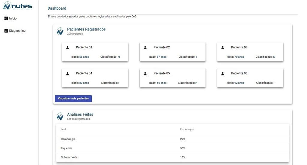 Paraíba Online • Laboratório de imagens da UEPB desenvolve software para classificação de tipos de AVC
